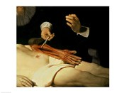 The Anatomy Lesson of Dr. Nicolaes Tulp, 1632 (arm detail)